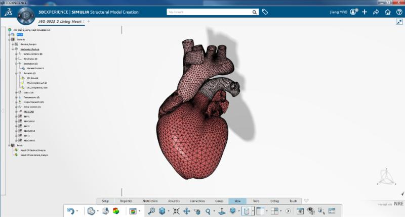 Het Living Heart-project van Dassault Systèmes (bron: Dassault Systèmes)